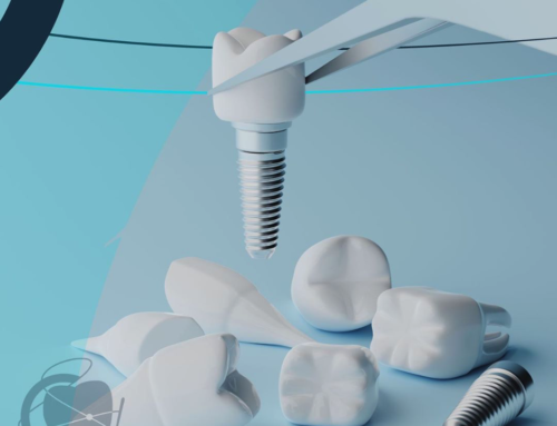 Implantologia: miti da sfatare